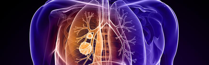 כל הגנים הקשורים לסרטן ריאה